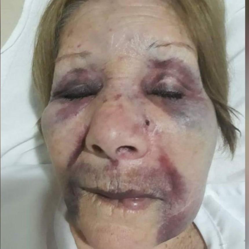 Mujer fue golpeada brutalmente para robarle en Corral de Bustos