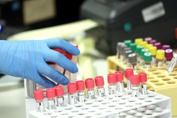 Un nuevo caso positivo importado de coronavirus en Villa Nueva