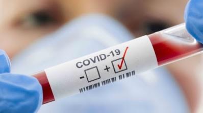 Covid-19.: Provincia implementará un nuevo test rápido para detectar positivos